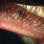 фото демодекоза глаз